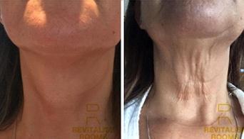 collagen-boost-results-3