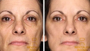 collagen-boost-results-4