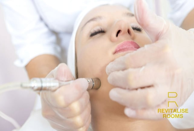 Microdermabrasion by Revitalise Rooms